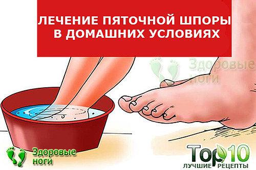 Лечение пяточной шпоры в домашних условиях