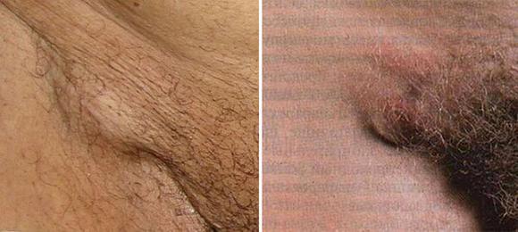 Уплотнения на бедре под кожей - фото, причины, лечение