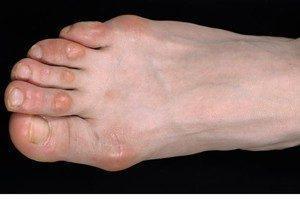 Мозоль на большом пальце ноги - как выглядит на фото и как убрать