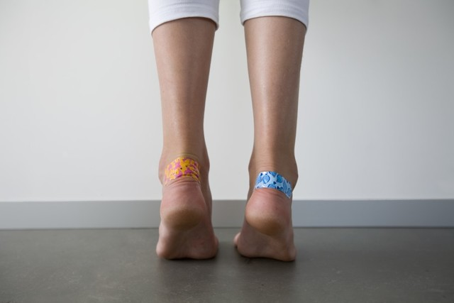 Как быстро вылечить мозоли на пятках от обуви