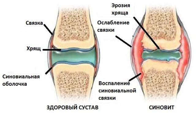 Опухло колено, без ушиба и больно ходить - что это такое?