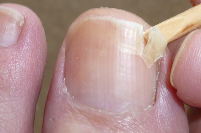 Трещины на ногтях рук - причины с фото и чем лечить