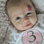 Родимые пятна у новорожденных на коже, виды, причины и фото