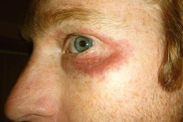 Пигментные пятна под глазами, причины, фото и их лечение