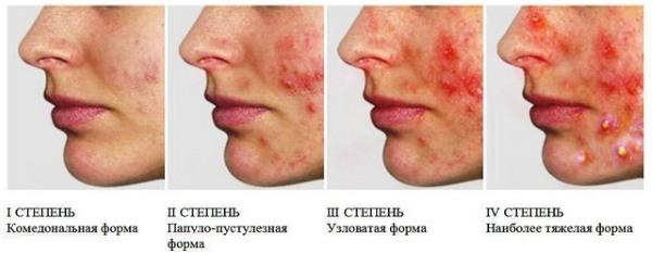 Подкожные прыщи на лице - причины с фото, и как лечить дома