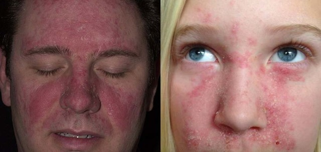 Лечение сухой и жирной себореи на лице народными средствами