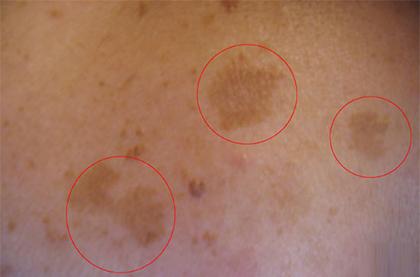 Пигментные пятна на груди у женщин, причины с фото, лечение