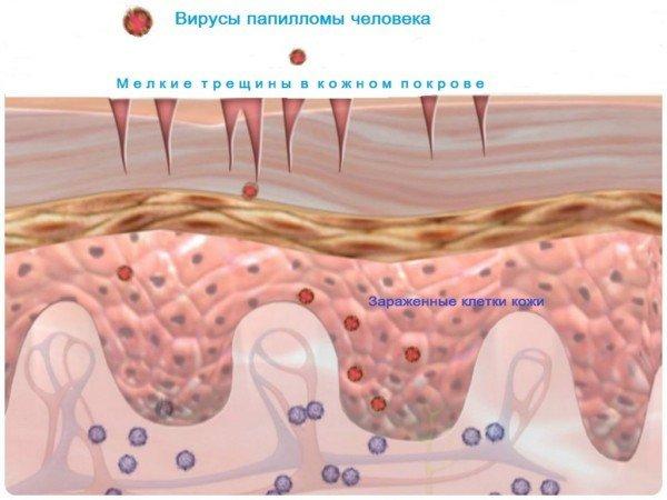Папиллома в горле: как выглядит на фото, причины и как убрать