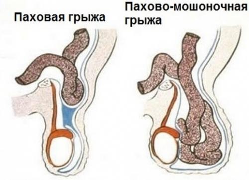 Шишка на мошонке и яичке у мужчин: фото, все причины, лечение