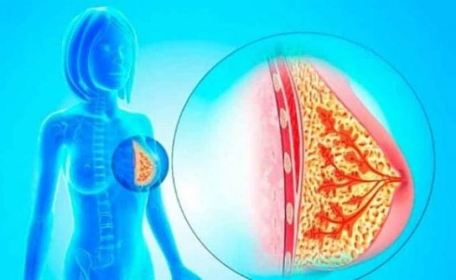 Внутрипротоковая папиллома молочной железы, причины с фото