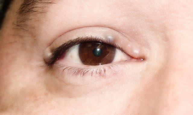 Шишка на веке глаза, на верхнем или на нижнем, фото, причины
