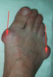 Шишка на мизинце ноги: все причины с фото и как лечить