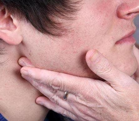 Шишка под подбородком - причины с фото, и лечение