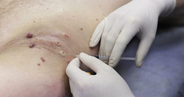 Папилломы на шее - причины с фото и как избавиться от них