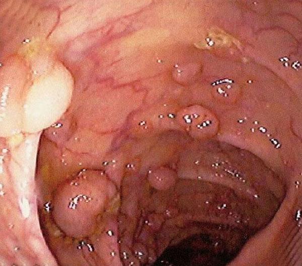 Папилломы на анусе и в заднем проходе, причины с фото и как лечить