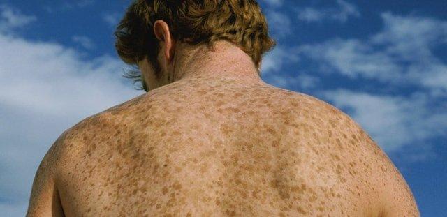 Темные пятна на коже, что это такое, фото на коже и как избавиться