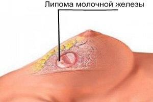 Шишка на грудине у мужчин и женщин - причины с фото, лечение
