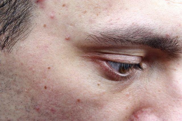 Мелкие прыщики на лице, фото, причины и как убрать