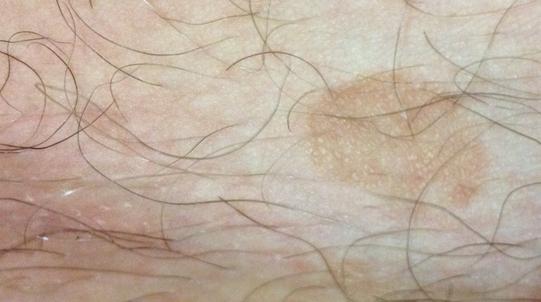 Пигментные пятна на члене у мужчин, причины с фото и лечение