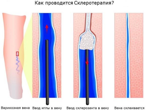 Почему лопаются сосуды на ногах? Все причины и лечение