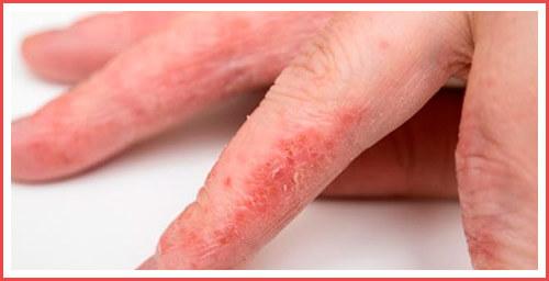 Красные пятна на коже, причины с фото и название болезни