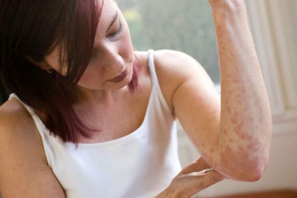Как лечить крапивницу у взрослого и ребенка