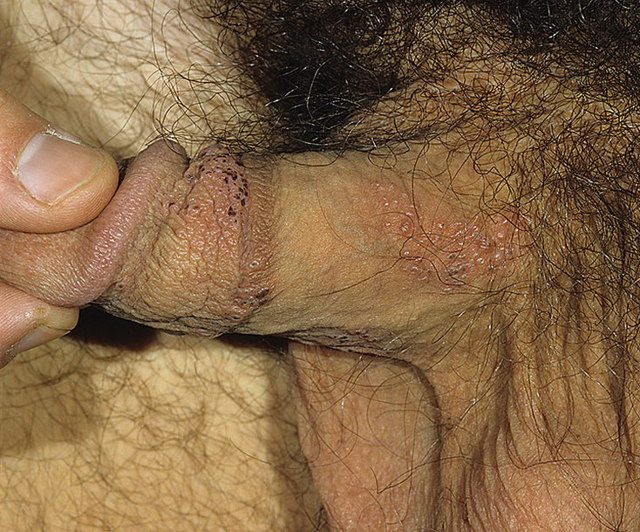 Трещины на половом члене и на головке, причины с фото и как лечить