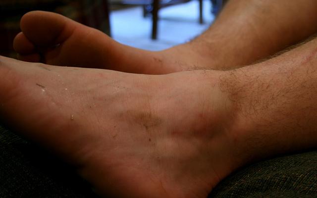 Опухла косточка на щиколотке - причины с фото и что делать