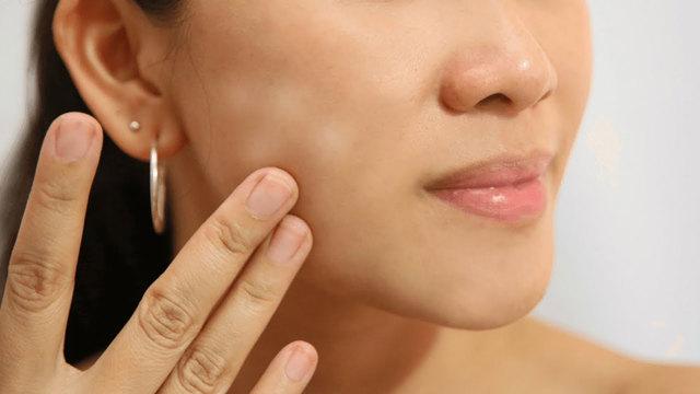 Белые пятна на лице у ребенка или взрослых, причины и фото