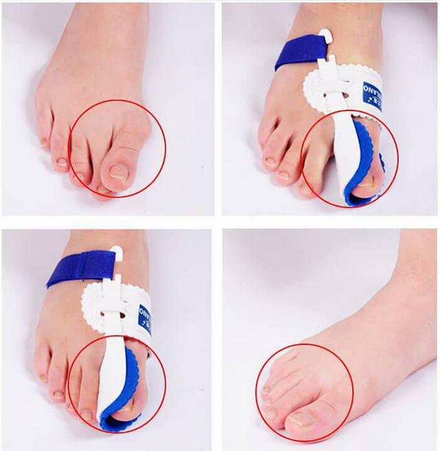 Шишка на ноге возле большого пальца - причины и как лечить