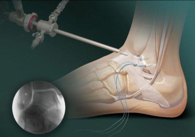 Трещина в голеностопе: фото, причины с фото и лечение