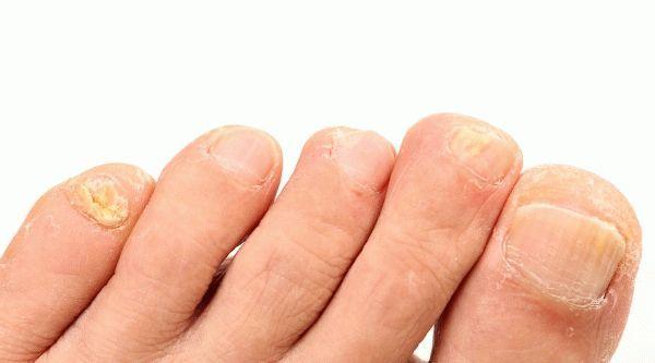 Ноготь на мизинце ноги раздваивается - что это? Причины и лечение