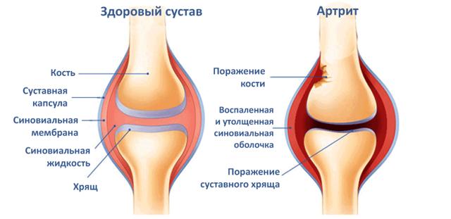 Боль в колене при сгибании или при ходьбе - 4 причины