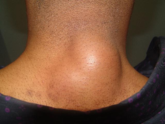 Подкожное уплотнение на шее у детей и взрослых, фото и причины