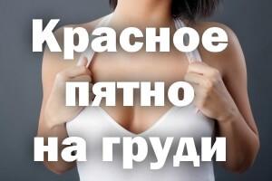 Красное пятно на грудине у женщин - что это, причины с фото