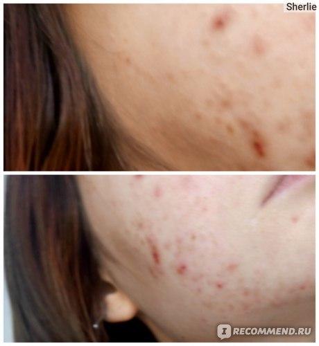 Чистотел от прыщей на лице и теле: как использовать и отзывы