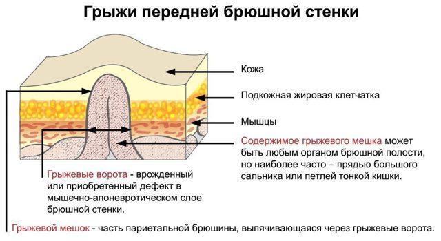Шишка между ребрами в области солнечного сплетения