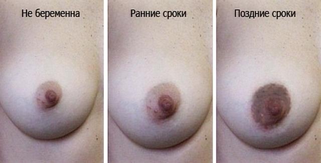 Прыщ на соске у женщин: фото, причины и лечение