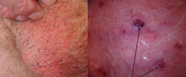Пятна на яичках у мужчин (красные, белые), причины с фото
