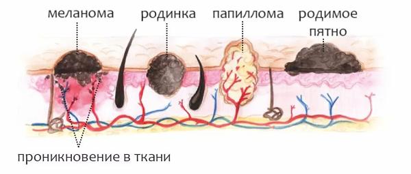 Папилломы под мышками, фото, причины появления и удаления