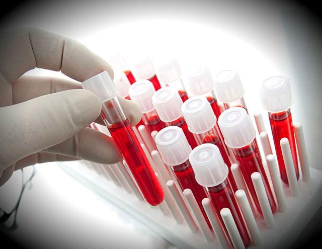 Переливание крови от прыщей (аутогемотерапии): помогает ли?