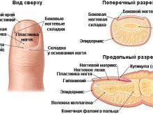 Ногти на ногах растут вверх? Все причины и как лечить!