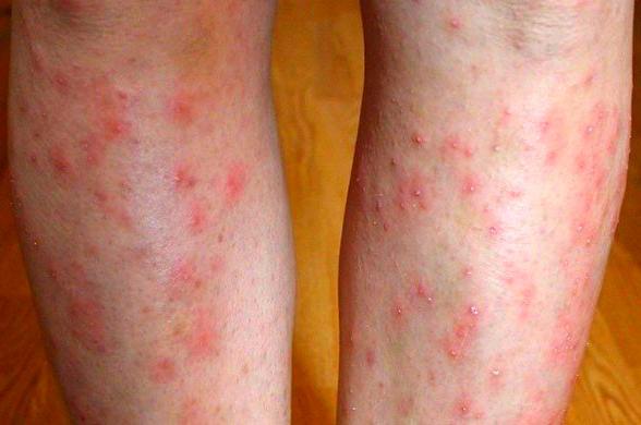 Красные точки на голени ног: причины с фото и чем лечить