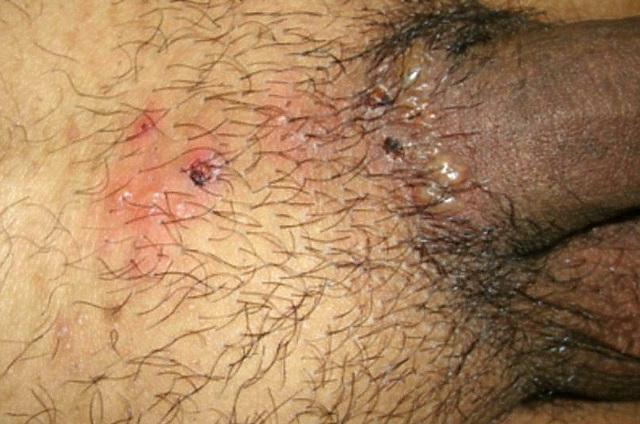 Прыщи на лобке у женщин или мужчин: фото, причины, лечение