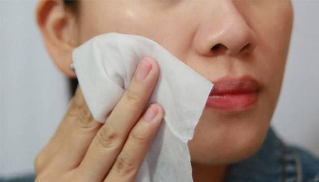 Перекись водорода от прыщей на лице: помогает ли избавится?