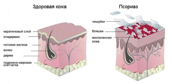 Левомеколь от прыщей  - как применять, отзывы и фото до и после