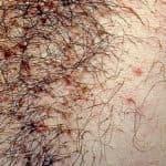 Гнойные прыщи на лобке у мужчин и женщин: фото, причины и лечение