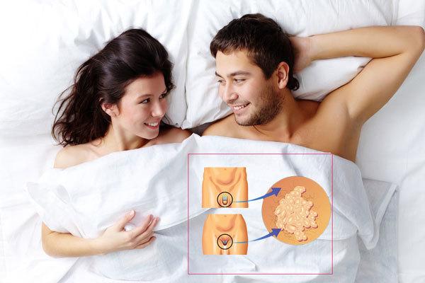 Папилломы на половых губах, виды, причины с фото и как убрать