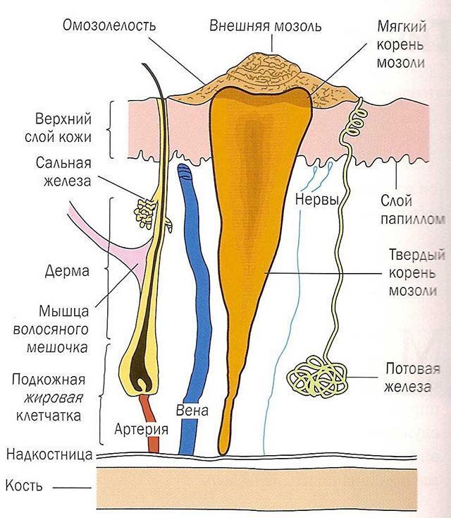 Натоптыши со стержнем на ступнях: фото, причины и лечение