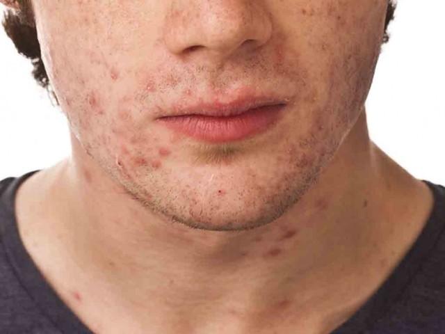 Красные прыщи на лице у взрослых и детей: фото, причины и лечение